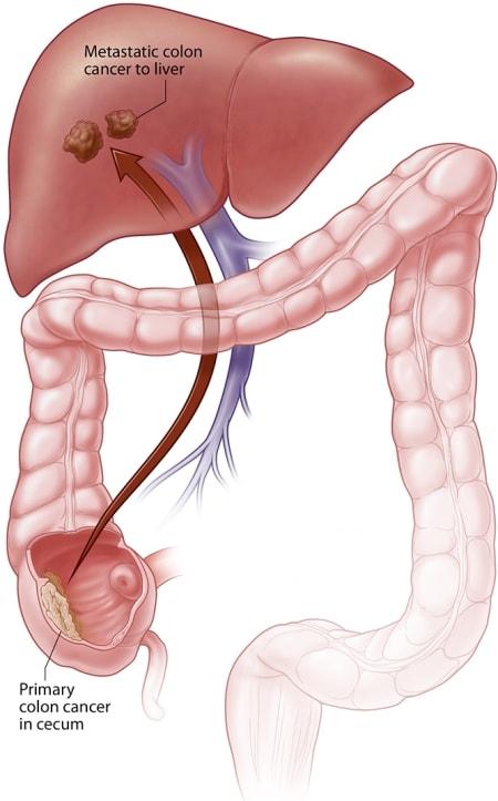 cancerul hepatic definitie