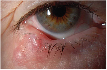 eyelid papilloma treatment