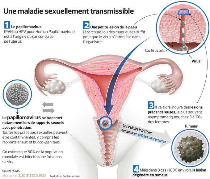 Op vorhautbändchen Penisvorhaut