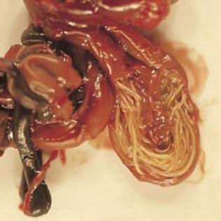 tratament parazitii intestinali la adulti