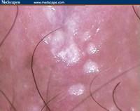 condilomi papilloma