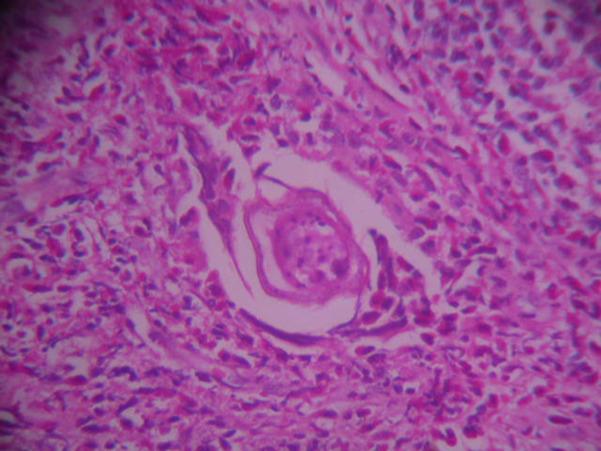 schistosomiasis mansoni curatare colon sare amara