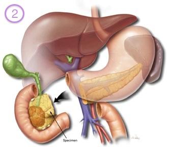 Tratament nou pentru bolnavii de cancer pancreatic