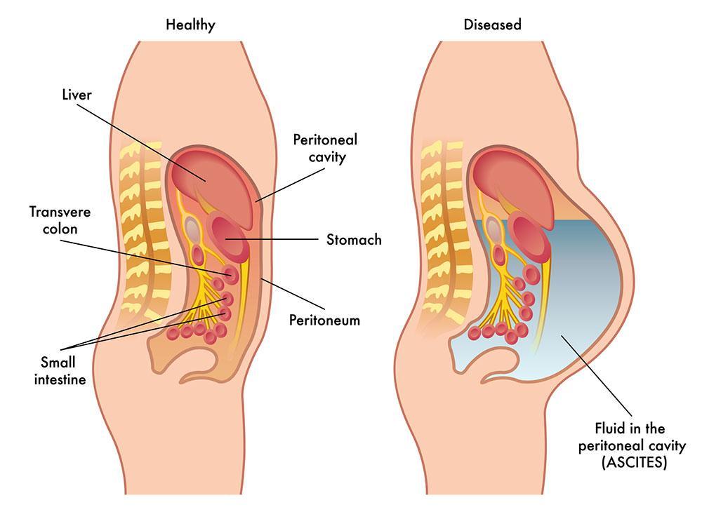 abdominal cancer ascites papillomavirus tongue cancer
