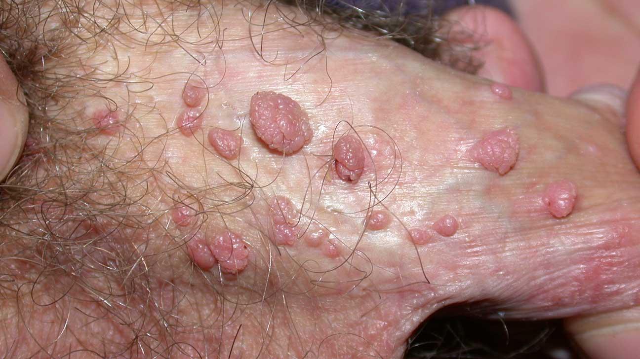 Studiu: jumatate dintre barbati, infectati cu virusul care provoaca cancer - leacurinaturiste.ro