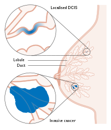 duct papilloma symptoms