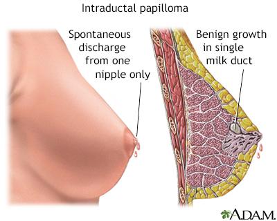 intraductal papillomas during pregnancy hpv virus kod dece