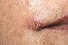 sintomas del papiloma humano en el ano