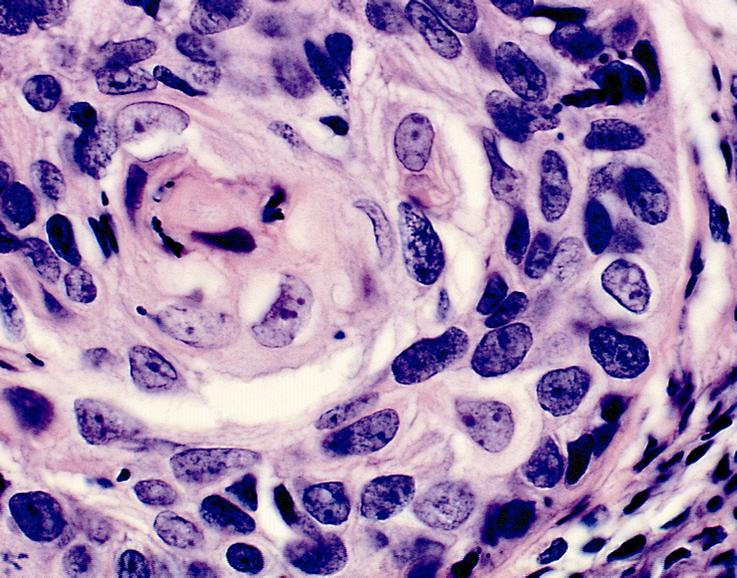 cancer laringe histologia