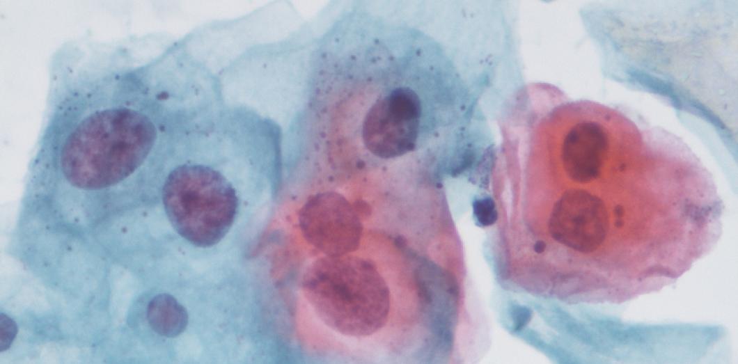 lesion papillomavirus homme