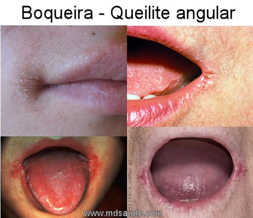 Hpv lingua sintomas. Hpv na lingua tratamento caseiro