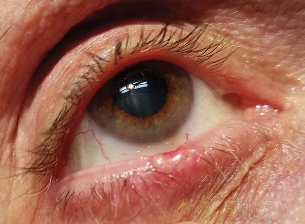papilloma a szemhéjfesték szemében