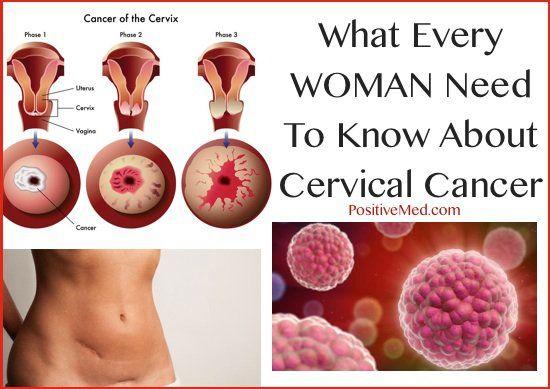 Cancerul de col uterin | ARAS – Asociatia Romana Anti-SIDA