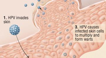 Capsule pentru cresterea parului placenta hpv
