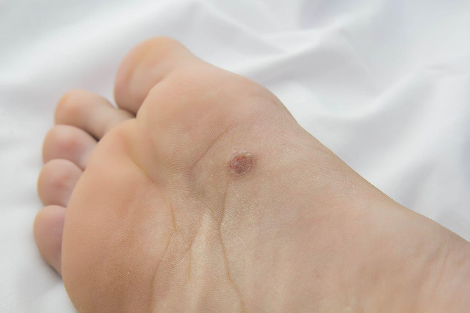 Kalanchoe en el tratamiento del hongo de las uñas