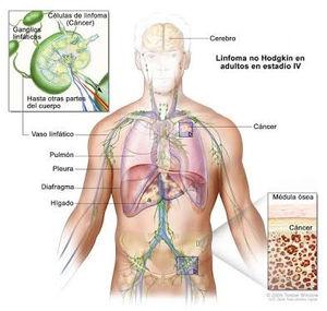 cancer hodgkin linfoma nemi szemolcs papilloma
