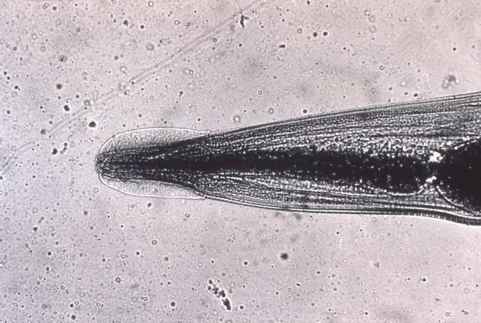 jaja enterobius vermicularis leczenie papiloma faringe