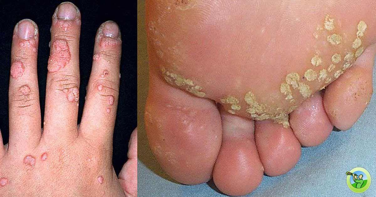 wart virus on feet cancerul pancreatic cauze