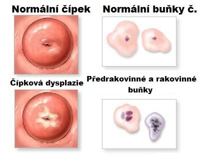 hpv virus kaj zena