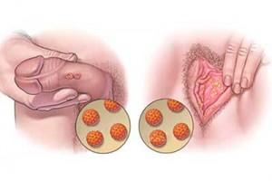 virus papiloma humano origen