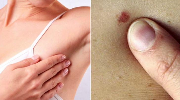 cancer la san barbati simptome