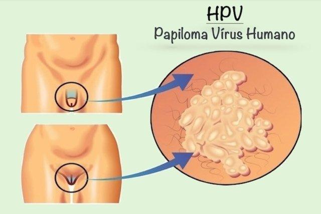 caracteristicas papiloma virus