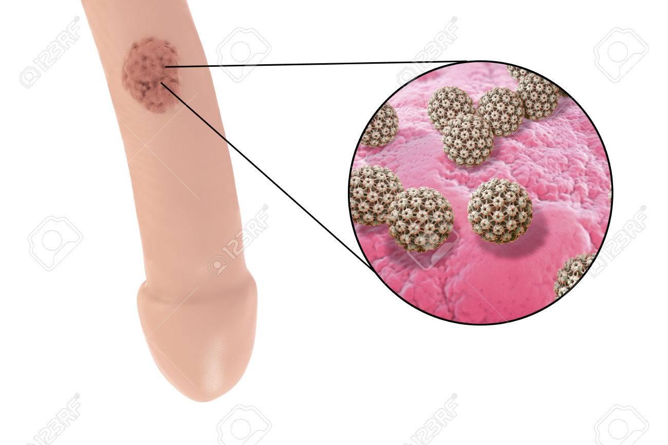Când testiculele sunt îndepărtate pentru cancerul de prostată