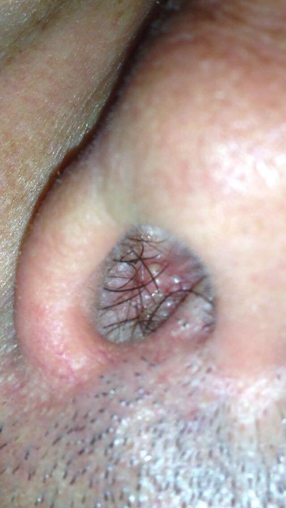 papilloma gola operazione el oxiuros que es