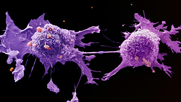 cancer more aggressive after chemo hpv durch warzen