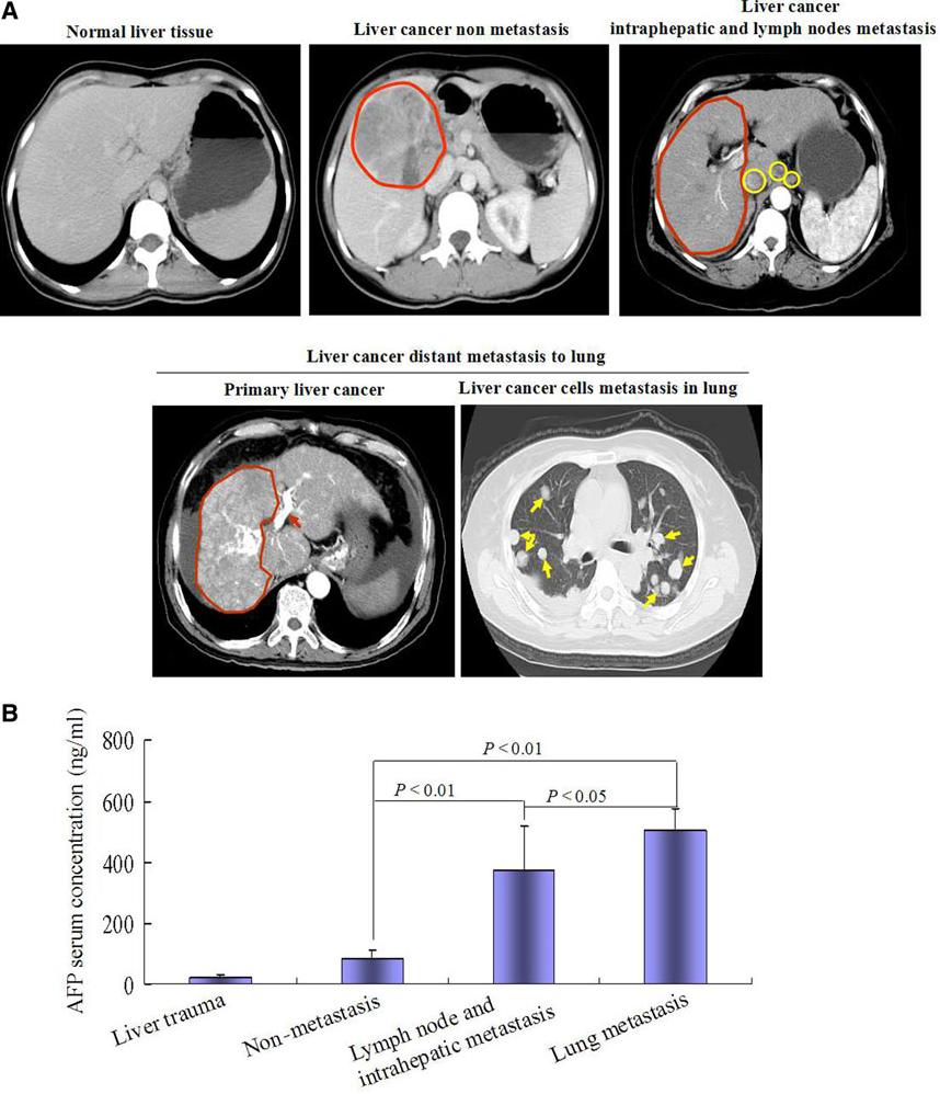 metastatic cancer hcc