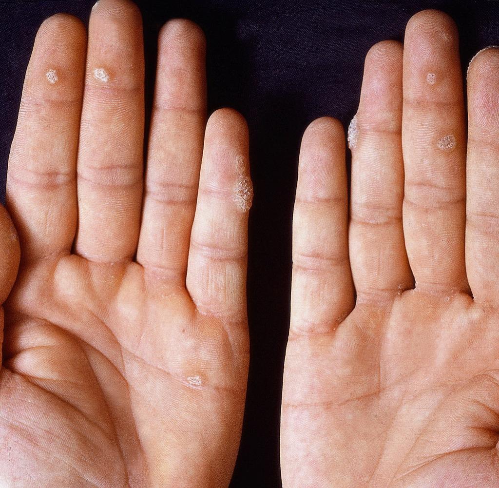 hpv warzen hand papanicolaou anormal ascus