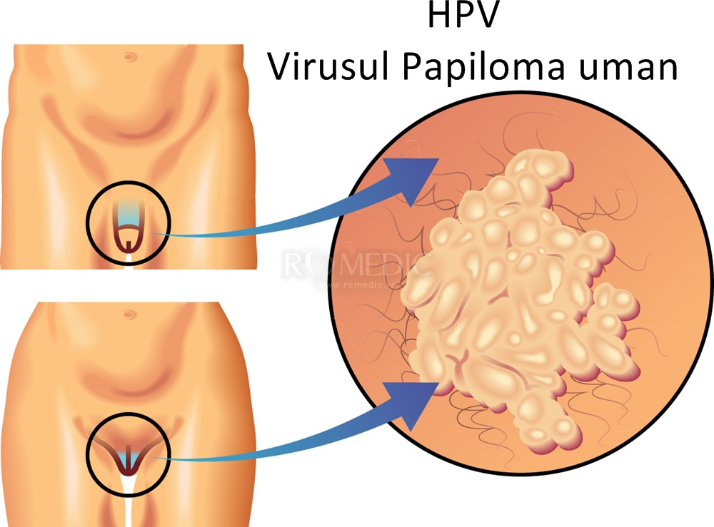 Infecţia cu HPV: Printre primele simptome care anunţa cancerul de col