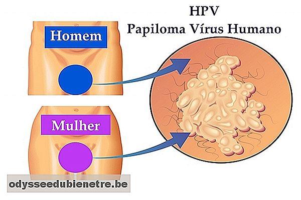 hpv genital masculino tratamento enterobius vermicularis histology
