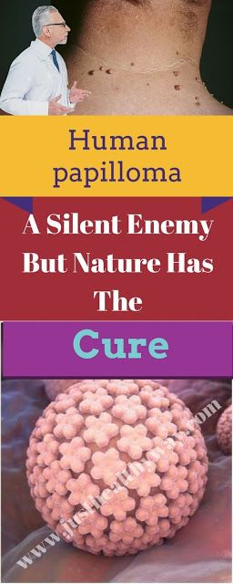 papilloma how to cure cancer romania incidence