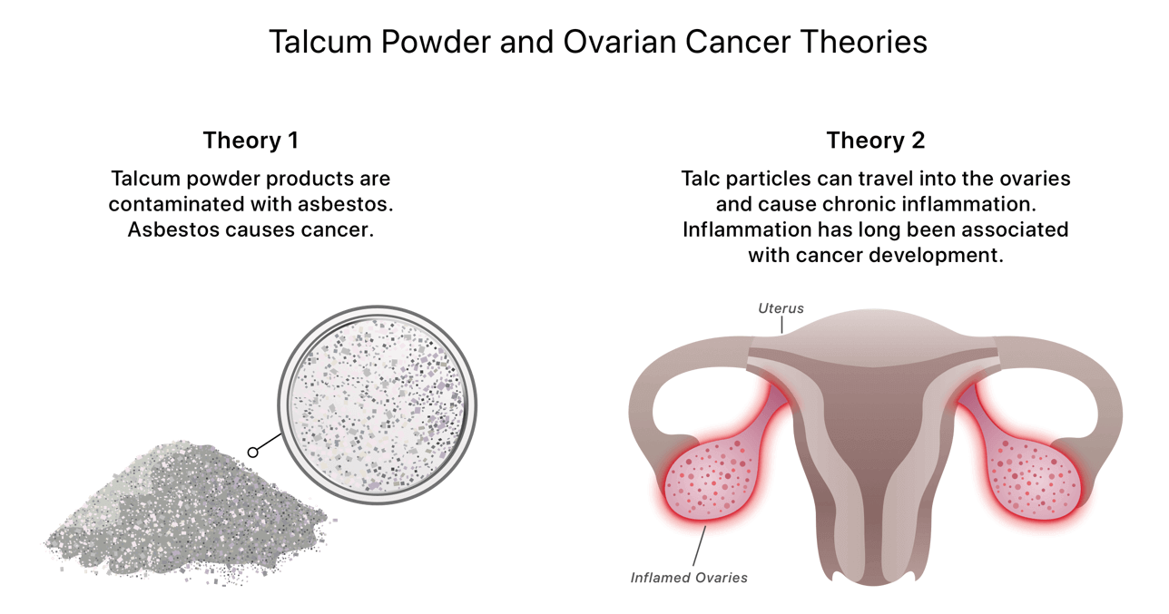 Talcum News Powder - Cancer ovarian