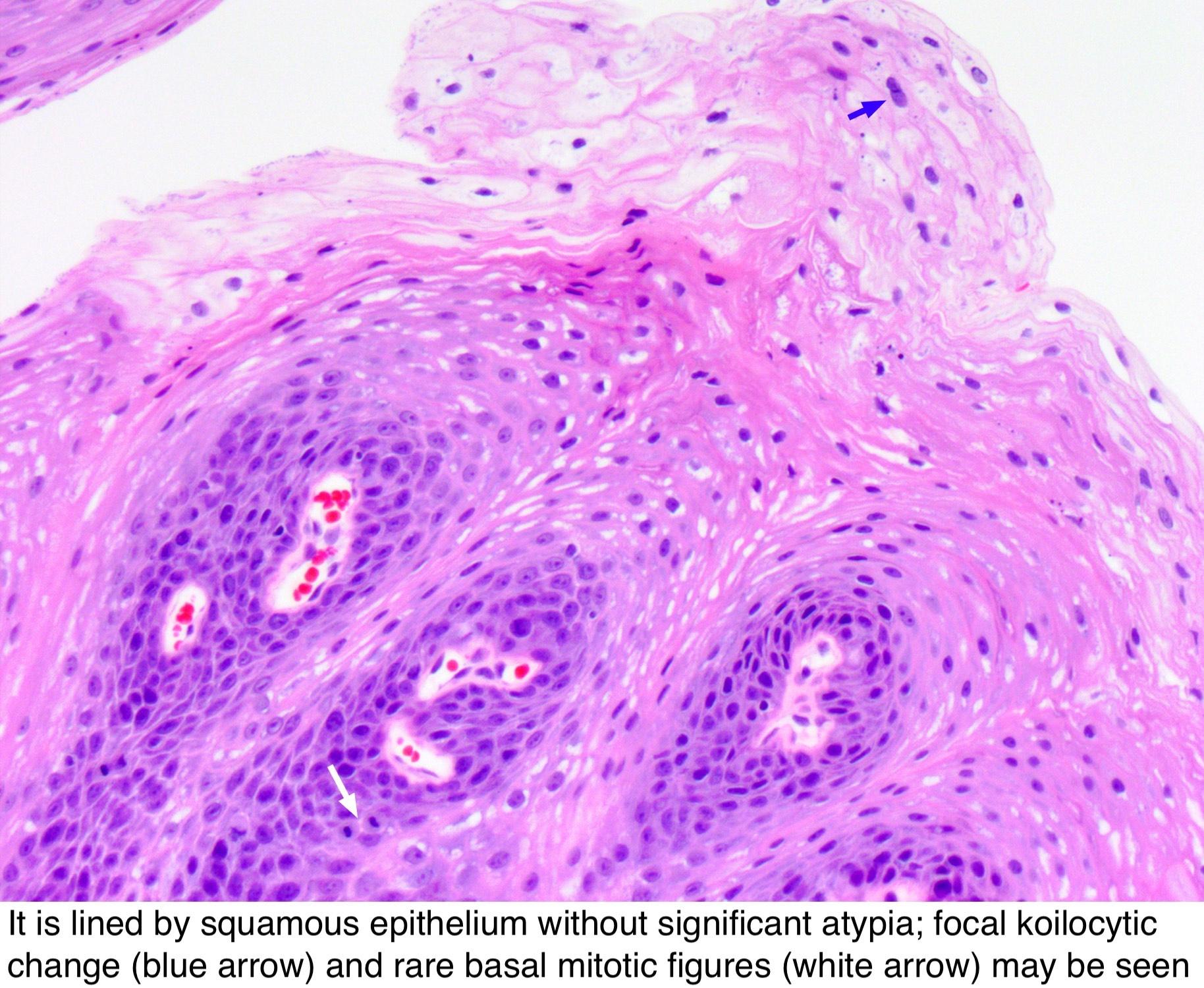 papilloma of larynx pathology