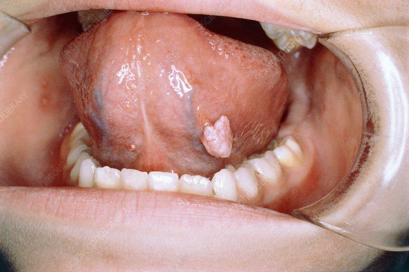 tratament limbrici
