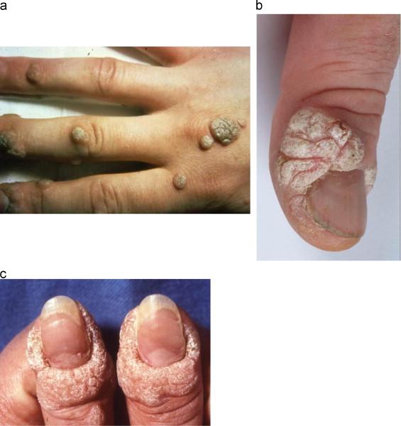human papillomavirus in hands papilloma virus sulla lingua cura