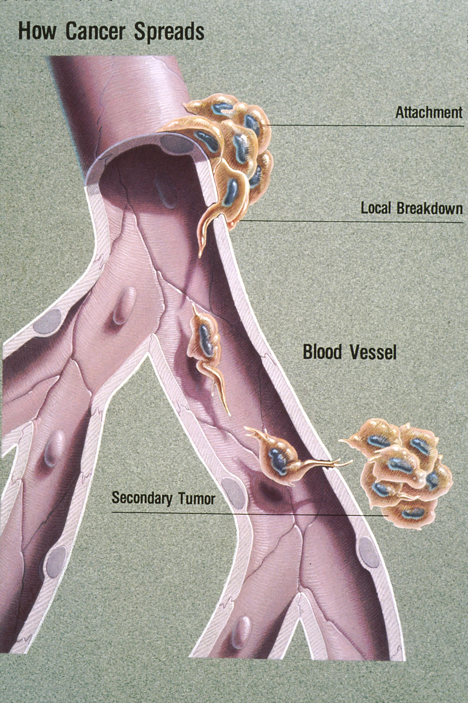 sarcoma cancer examples