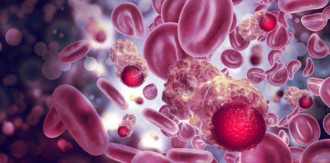 cancer peritoneal cauze