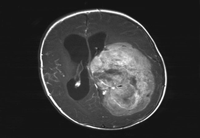 choroid plexus papilloma radiation therapy
