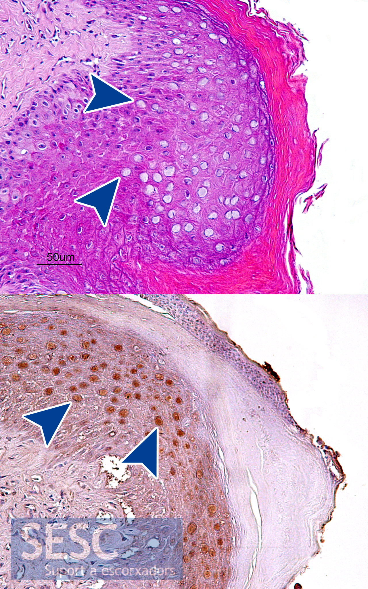 cancer colon depistage hpv males vaccination
