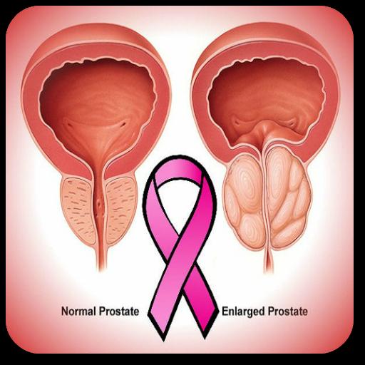 papillary thyroid cancer in lymph nodes