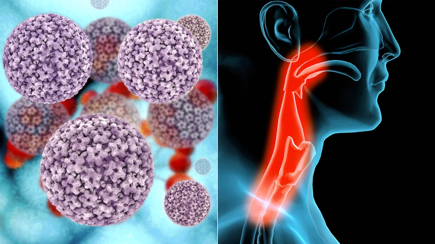 hpv virus and laryngeal cancer