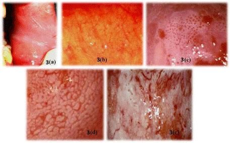 il pap test rileva il papilloma virus 10 virusi
