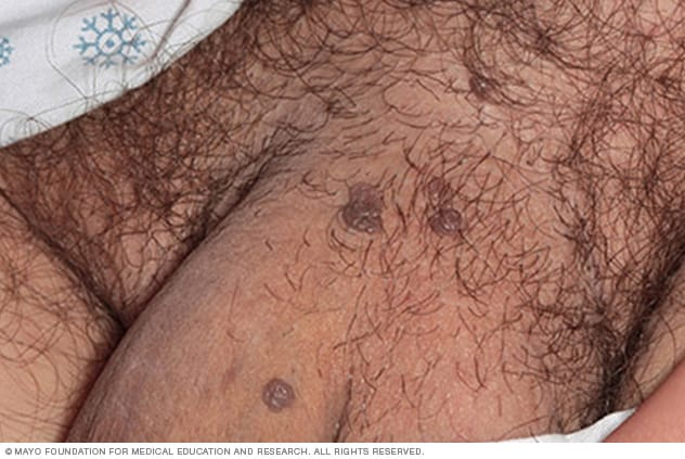genital hpv symptoms female