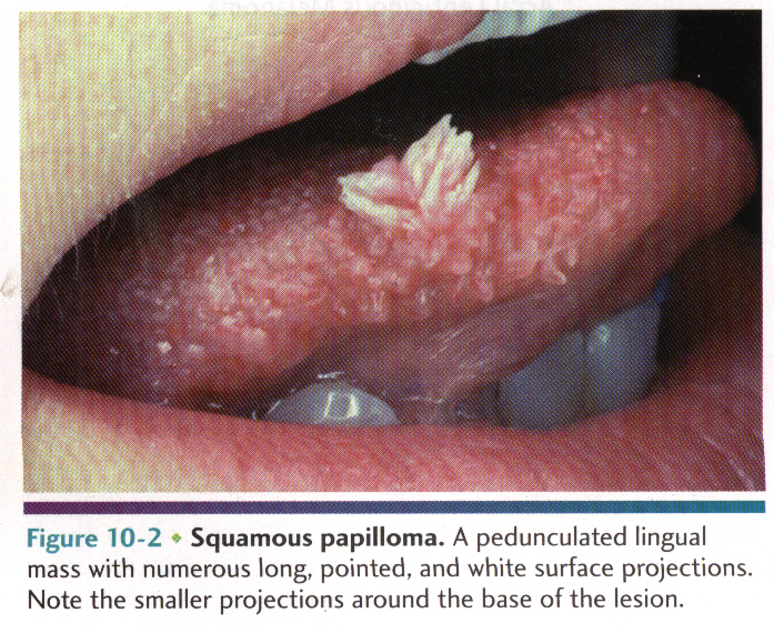 squamous papilloma syndrome