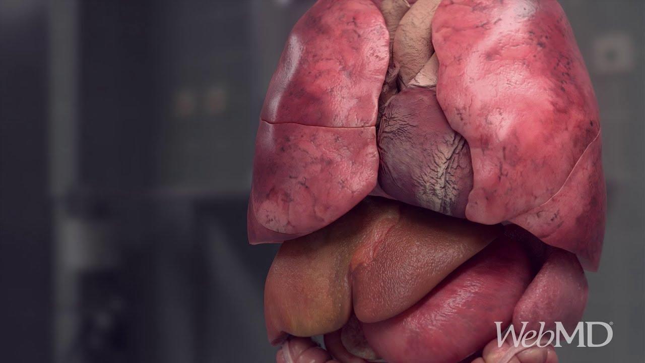 Hemoroizii şi cancerul - Cancer