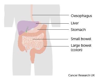cancer colon blockage