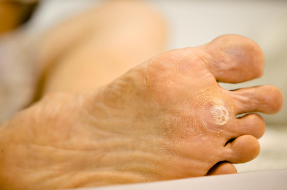 human papillomavirus infection on foot